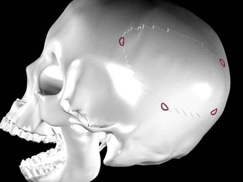 Una parte del cranio dove può essere inserito lo Skull Grip