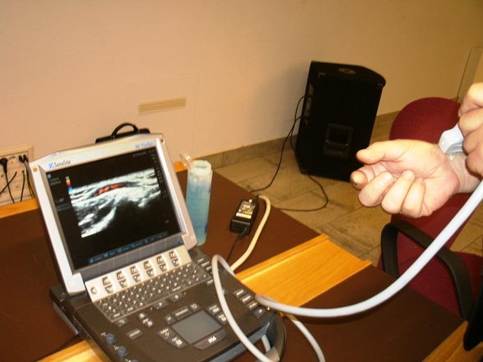 Ecografo ultrasuoni all'avanguardia utilizzato per le visite specialistiche